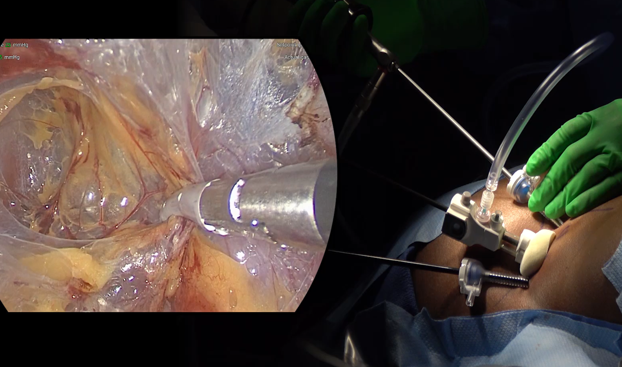The Mini Back Scope Adrenalectomy (MBSA) is performed with a fiberoptic camera and fine endoscopic instruments
