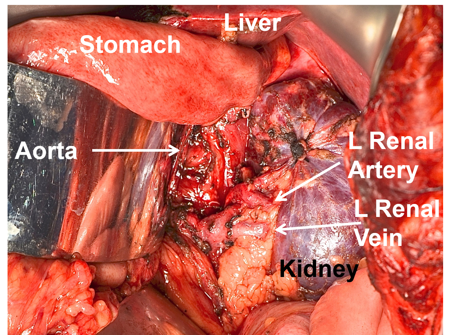 "Completed resection after an open, old-fashioned reoperation for pheochromocytoma tumor spilled throughout the abdomen (called ""pheochromocytomatosis"") at the initial operation 15 years prior at an outside institution."