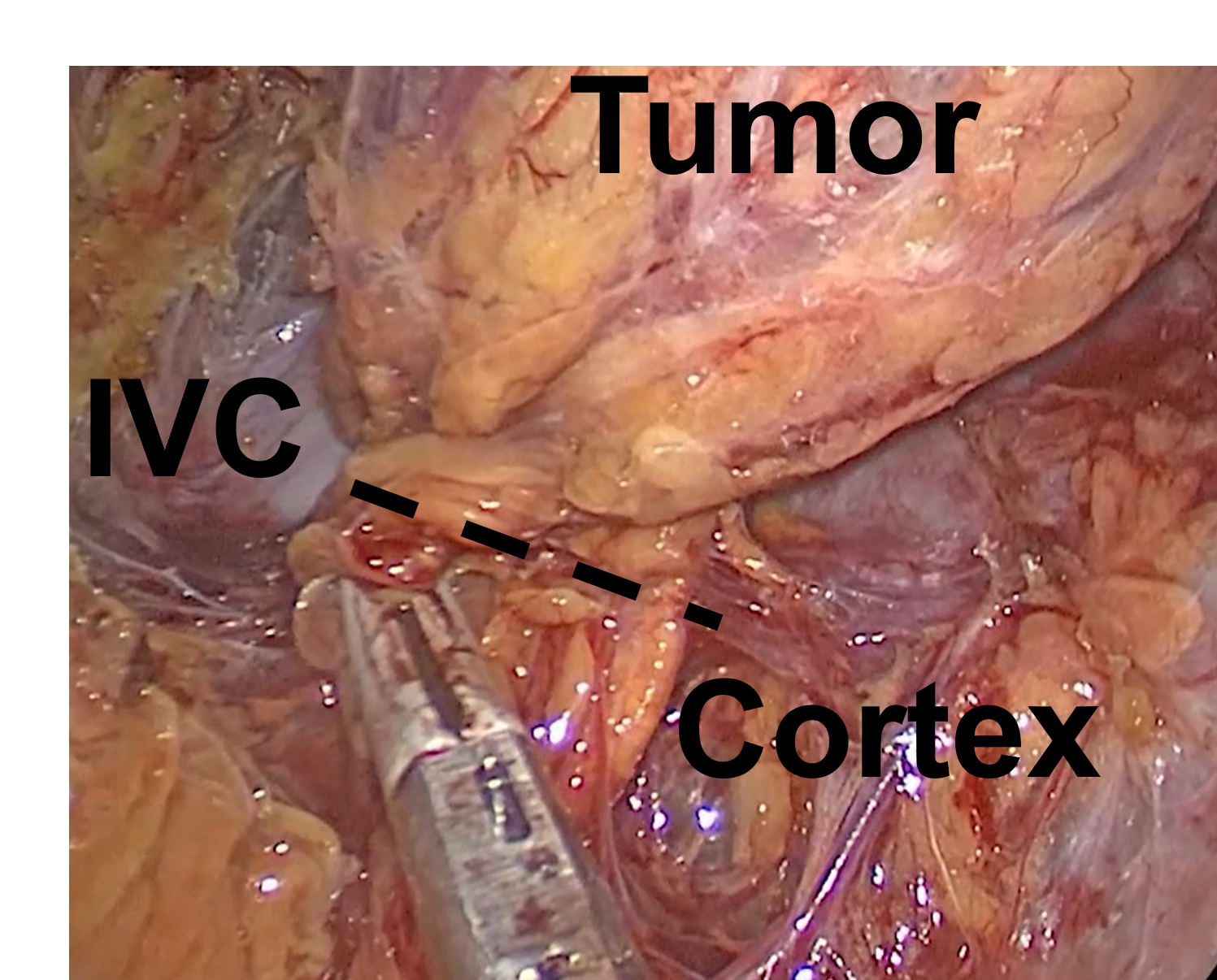 Partial Cortical-Sparing Adrenalectomy Performed via Right Mini Back Scope Adrenalectomy (MBSA). The tumor specimen is divided at the dotted line, removing the tumor, but preserving the normal cortex and the inferior vena cava (IVC).
