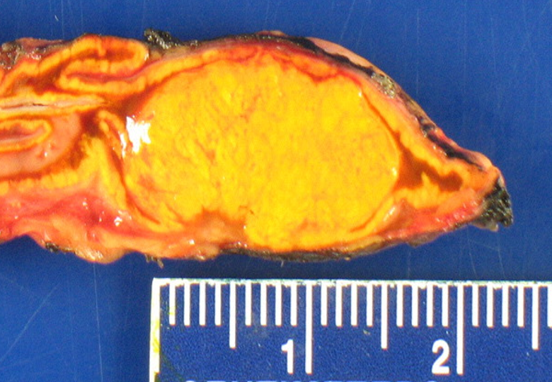 A typical functional adrenal tumor producing excess aldosterone causing Conn's Syndrome.
