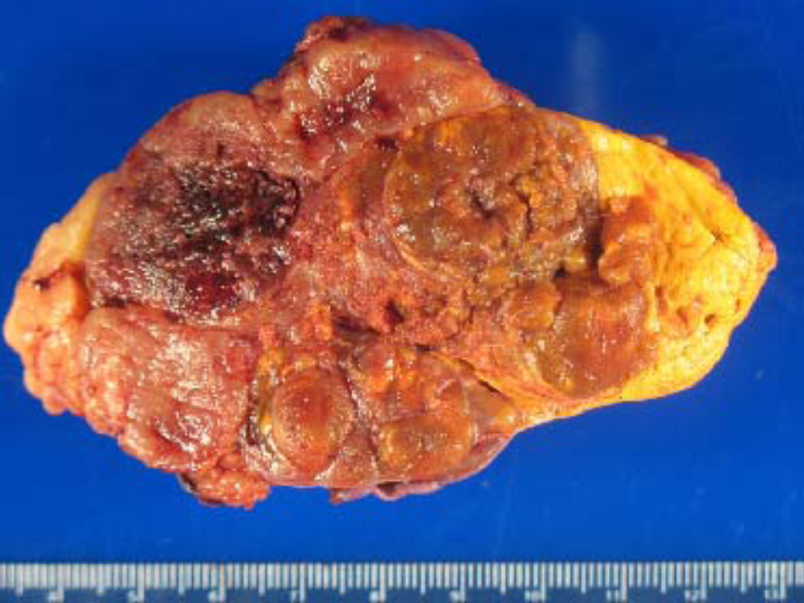 A typical 10 cm adrenal cancer demonstrating irregular borders, invasion, and areas of necrosis (dead cells) and hemorrhage (bleeding).