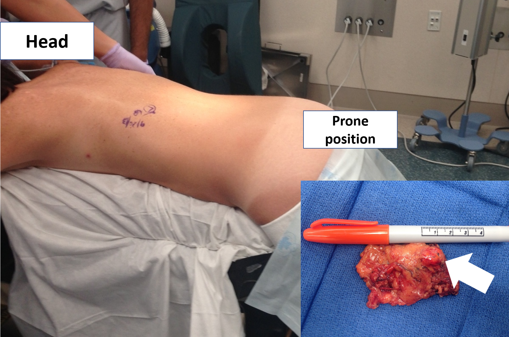 The correct prone position of a patient undergoing a left Mini Back Scope Adrenalectomy (MBSA).