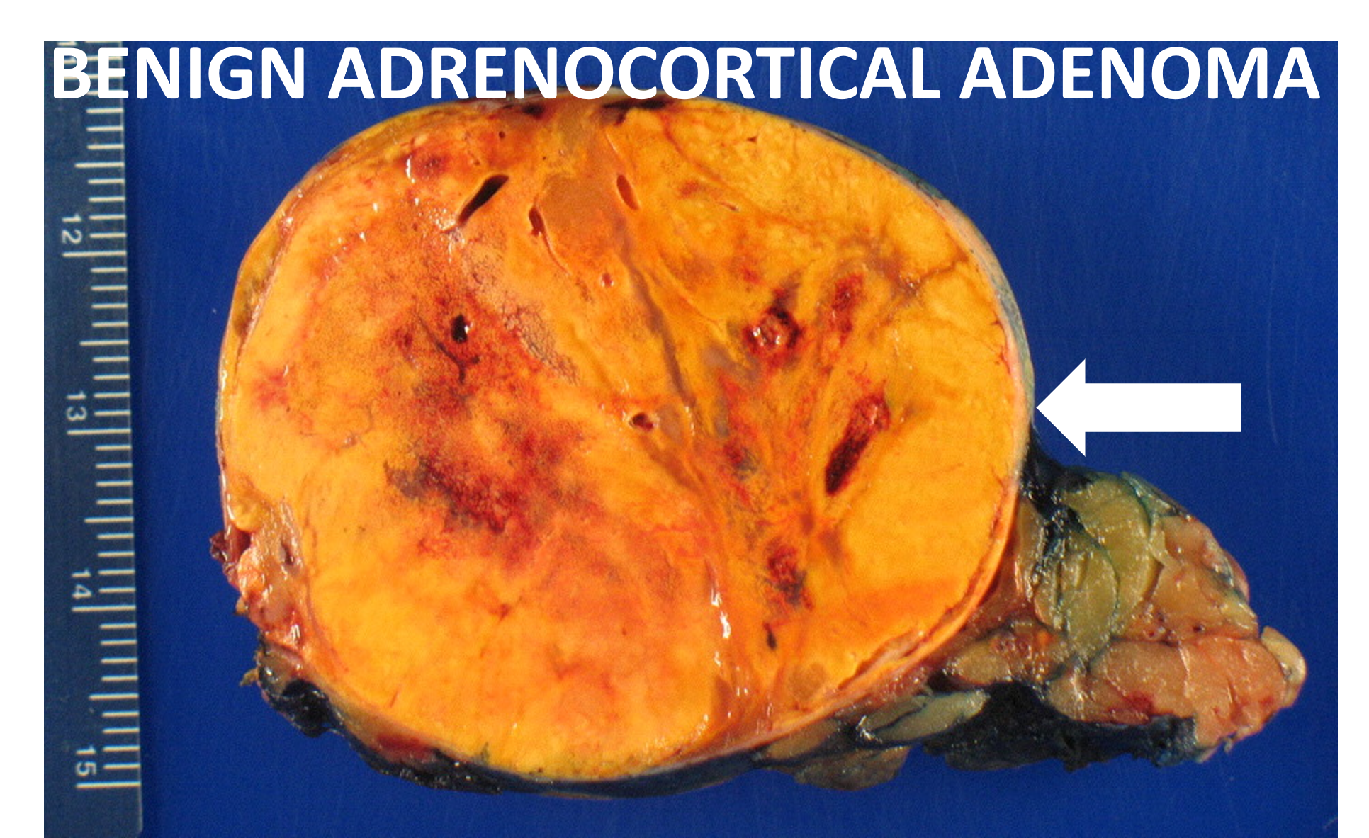 Gross pathology of a typical adrenal adenoma (arrow). It has a typical yellow-orange color. This tumor caused Cushing's syndrome (too much cortisol).