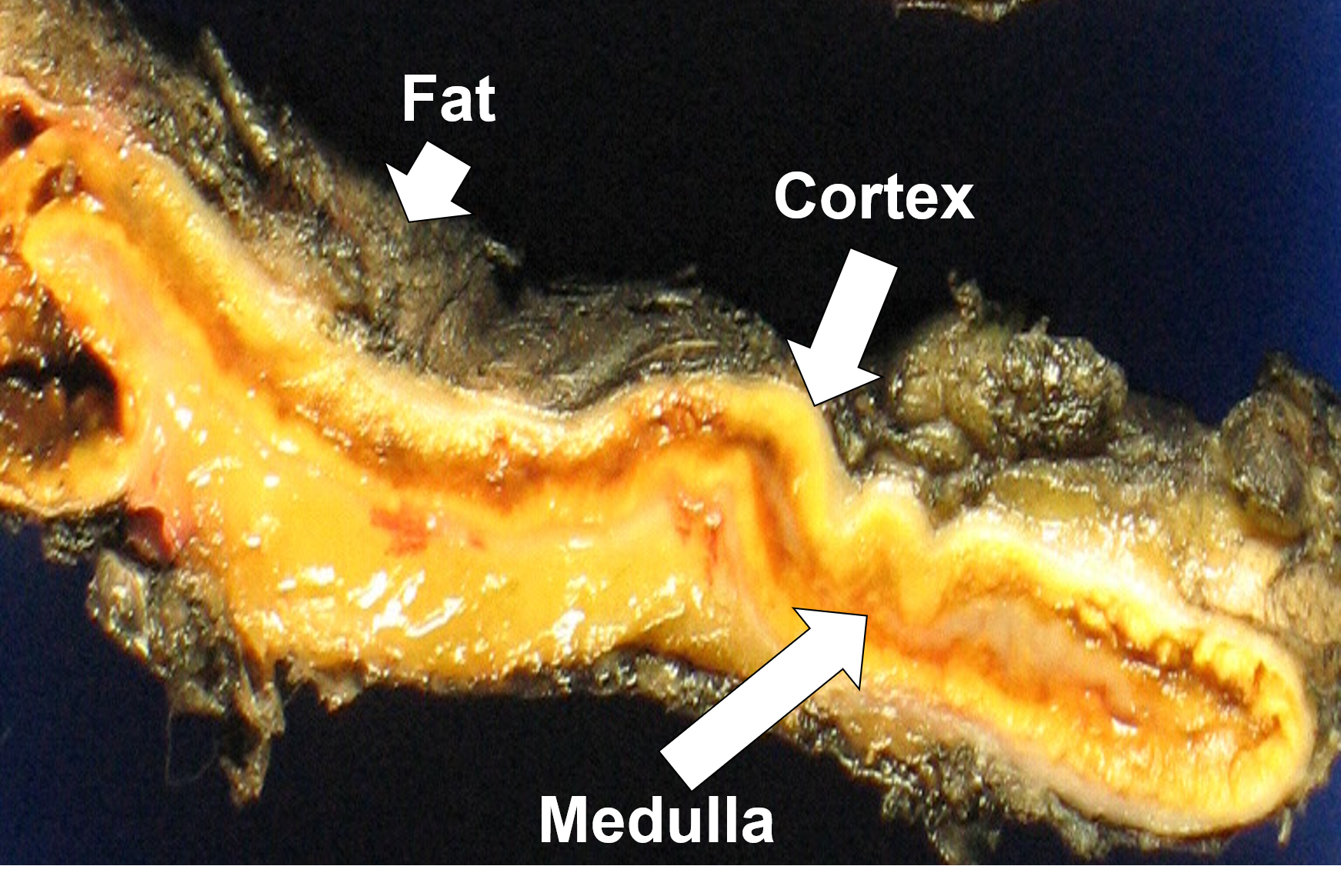 Transection of a portion of normal adrenal tissue displaying the adrenal cortex (yellow), medulla (brownish), and surrounding fat